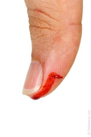 Сонник Кровотечение