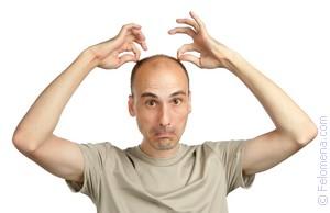 сонник выпадают волосы лысина